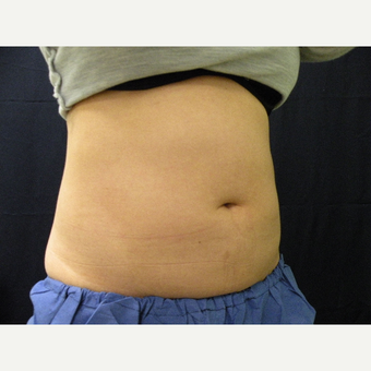 35-44 year old woman treated with CoolSculpting after 3680407