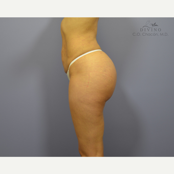 25-34 year old woman treated with Butt Augmentation after 3421210