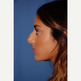 18-24 year old woman treated with Rhinoplasty before 3288873