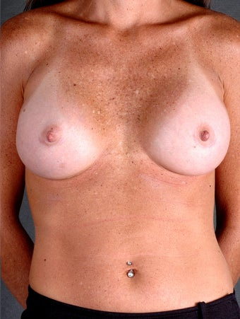 Surgery breast implants maryland