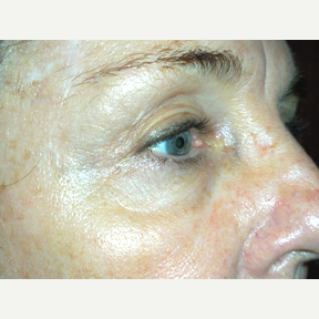 67 year old woman treated with Thermage