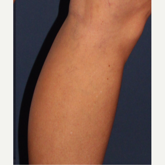 35-44 year old woman treated with Sclerotherapy after 3110216