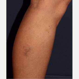 35-44 year old woman treated with Sclerotherapy before 3110216