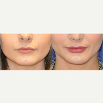 18-24 year old woman treated with Lip Augmentation before 2018978