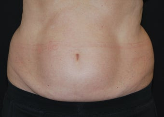CoolSculpting  before 1515955