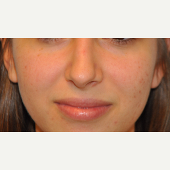 18-24 year old woman treated with Rhinoplasty before 3624793