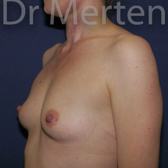 25-34 year old woman treated with Breast Augmentation before 3551695