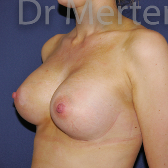 25-34 year old woman treated with Breast Augmentation after 3551695