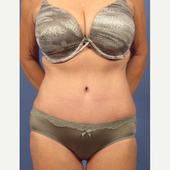 55-64 year old woman treated with Tummy Tuck after 3095736