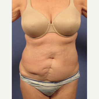 55-64 year old woman treated with Tummy Tuck before 3095736