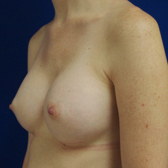 18-24 year old woman treated with Breast Augmentation after 3253780