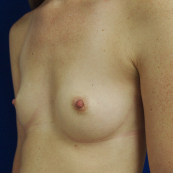 18-24 year old woman treated with Breast Augmentation before 3253780