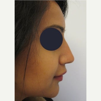 25-34 year old woman treated with Non Surgical Nose Job using Juvederm Volift after 1919069