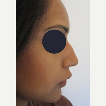 25-34 year old woman treated with Non Surgical Nose Job using Juvederm Volift before 1919069