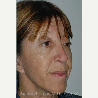 49 year old woman treated with Revision Rhinoplasty after 3460667