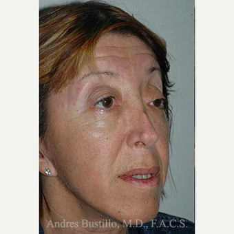 49 year old woman treated with Revision Rhinoplasty before 3460667