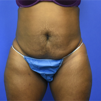 35-44 year old woman treated with Tummy Tuck before 3582774