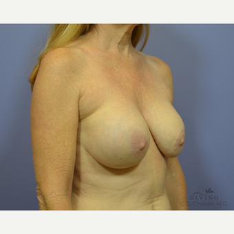 55-64 year old woman treated with Breast Implant Removal before 3421735