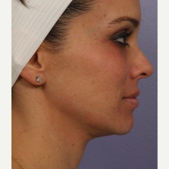 35-44 year old woman treated with Ultherapy before 2223161