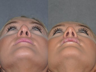 Revision Rhinoplasty performed Closed (endonasal)  after 1521382