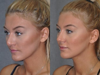 Revision Rhinoplasty performed Closed (endonasal)  1521382