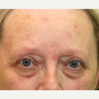 55-64 year old woman treated with Brow Lift before 3295077