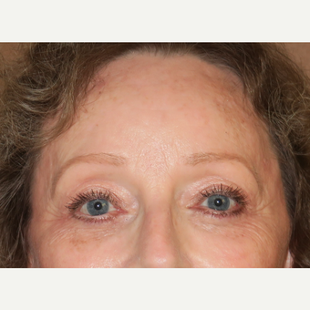 55-64 year old woman treated with Brow Lift after 3295077