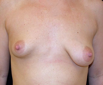 Before and after Correction of Breast Asymmetry with Lift One Side and Implants before 1093504