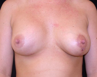 Before and after Correction of Breast Asymmetry with Lift One Side and Implants after 1093504