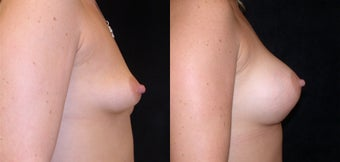 Before and after Correction of Breast Asymmetry with Lift One Side and Implants 1093504