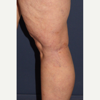 45-54 year old female treated with Sclerotherapy after 3244684