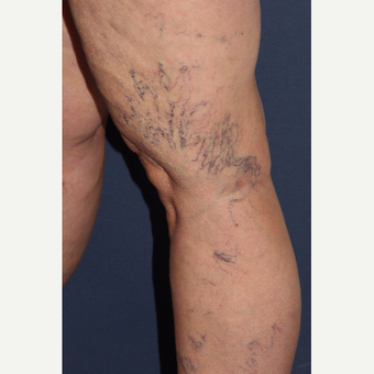 45-54 year old female treated with Sclerotherapy before 3244684