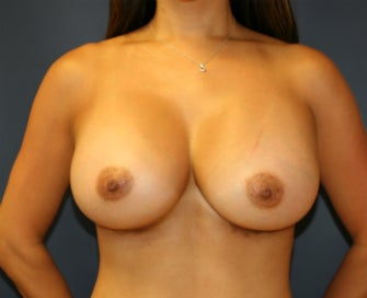 Gummy Bear Natural Shape Breast Augmentation after 1080200