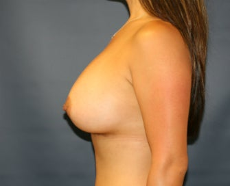 Gummy Bear Natural Shape Breast Augmentation 1080200