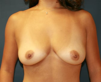 Gummy Bear Natural Shape Breast Augmentation before 1080200