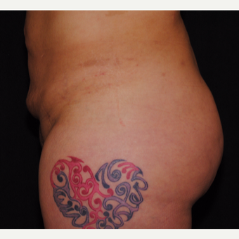 35-44 year old woman treated with Brazilian Butt Lift after 3100220