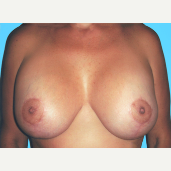Breast Lift with Implants after 3748887