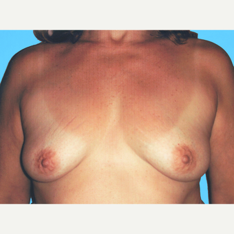 Breast Lift with Implants before 3748887