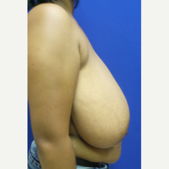 Breast Reduction and Lift before 3838323