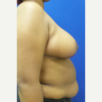 Breast Reduction and Lift after 3838323