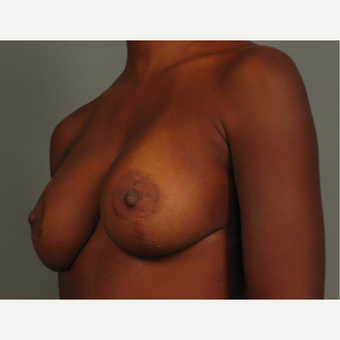 35-44 year old woman treated with Breast Lift with Implants after 3464581