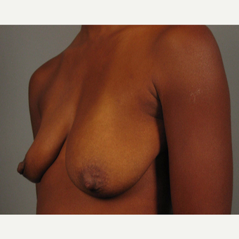 35-44 year old woman treated with Breast Lift with Implants before 3464581