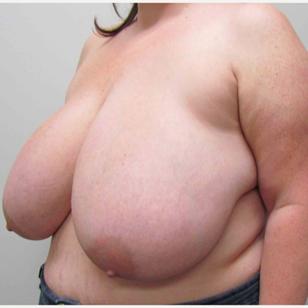Breast Reduction for this 39 Year Old Woman before 3043145