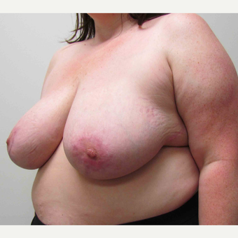 Breast Reduction for this 39 Year Old Woman after 3043145