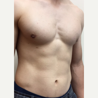 25-34 year old man treated with Gynecomastia Surgery. after 3588391