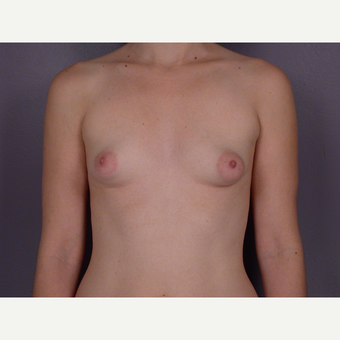18-24 year old woman treated with Breast Augmentation before 3278098