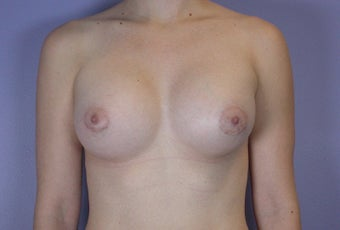 18-24 year old woman treated with Breast Augmentation after 3278098
