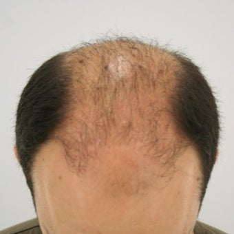 25-34 year old man treated with FUE Hair Transplant 1622264