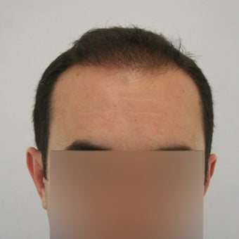 25-34 year old man treated with FUE Hair Transplant after 1622264