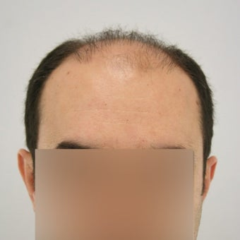 25-34 year old man treated with FUE Hair Transplant before 1622264